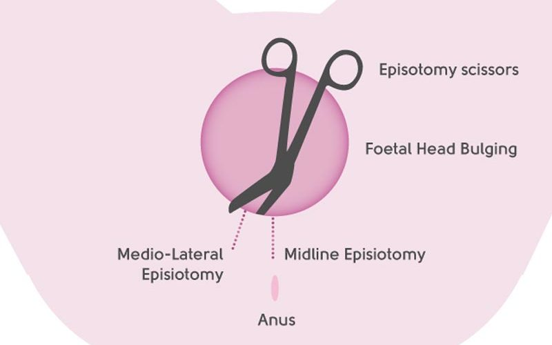 My Top 5 birth interventions that may lead to pelvic floor dysfunction